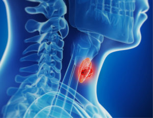 thyroid-cancer-